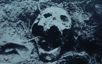 Những chiếc đinh vẫn còn trên sọ người. Liệt sĩ này đã bị chúng đóng đinh vào đầu đến chết.