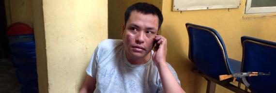 Nguyễn Chí Đức bị hành hung